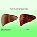Autoimunitná hepatitída
