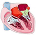 Myocarditis, pericarditis and endocarditis