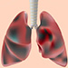 Newly diagnosed COPD - obstructive ventilatory impairment