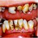 Parodontitis dospelých