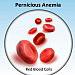 Primomanifestácia pernicióznej anémie formou rozvoja sekundárneho infarktu myokardu