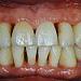 Úvod do dlahovania zubov u parodontologických pacientov
